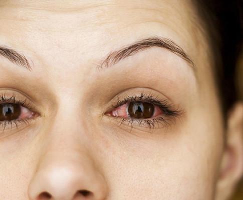 Почему после бани гноятся глаза и как их лечить